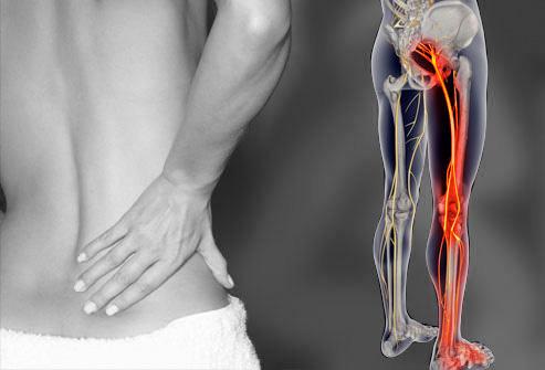 坐骨神経痛の症状
